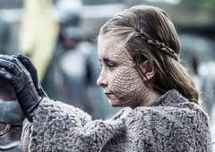 Saiba mais sobre a Escamagris, a doença de Game of Thrones